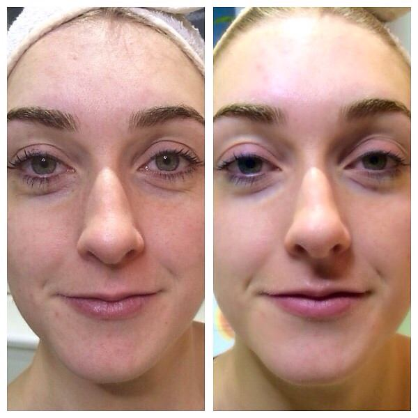 LED light therapy before and after jpg