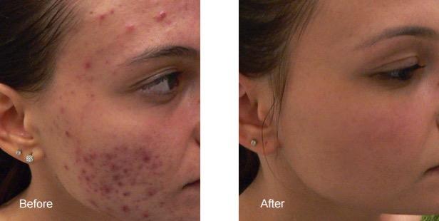 Bxa acne laser1 jpg