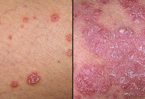 Dermnet rf photo of psoriasis symptoms jpg
