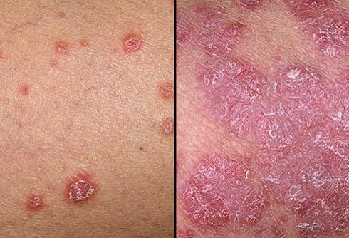 Dermnet rf photo of psoriasis symptoms jpg